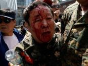 A South Korean war veteran is left injured after the protest
