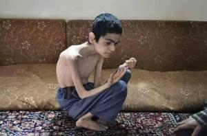 child starving
