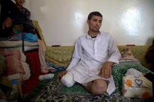 Khaled `Odah, 35, a local vegetable seller who had his right leg amputated after sustaining injuries in an airstrike on Bawn market outside the town of Amran on July 6, 2015. © 2015 Ole Solvang/Human Rights Watch