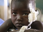 A young boy, injured while fleeing from clashes, rests at a medical clinic inside the United Nations compound on the outskirts of the capital Juba in South Sudan. UN diplomats said as many as 500 people have been killed in violence that is believed to be largely along ethnic lines. (Hakim George/Reuters)