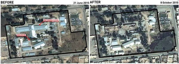 MSF Hospital compoud, arial view before and after bombing. (Photo: MSF)