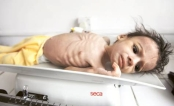 A malnourished child lies on a weighing machine at a therapeutic feeding Centre at Al Sabyeen hospital in Sana'a. (Reuters)