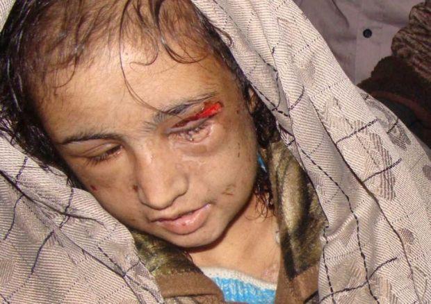 child bride tortured