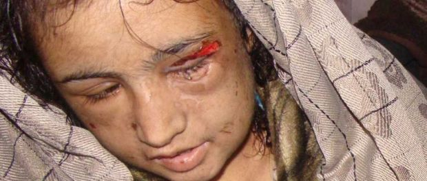 child bride tortured