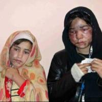 Members of a family receive treatment at a hospital after the acid attack.(Photo: Reuters). alistairreignblog.com