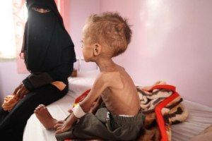 UNICEF Faisal, 18 months old is treated for severe acute malnutrition at Sabeen hospital in Yemen's capital Sana'a.