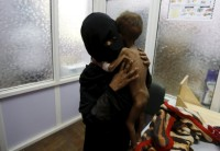A Picture And Its Story: A Life in The Balance: The mother of 21-month-old Majed Ayyash prepares him to be weighed in a malnutrition intensive care unit in Sanaa, Yemen July 30, 2015. (Photo: Reuters/Khaled Abdullah).