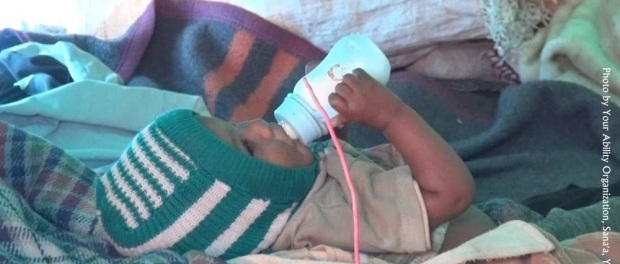 Yemen: A baby is receiving medical care and life-saving milk at a nourishing department in Sana'a. I is only thru your donations that hospitals can save children from the slow agonizing death by starvation.