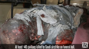 Last month the world temporarily expressed outrage at the Saudi's when over one hundred and forty (140) men, women and children were killed, and at least 525 others injured, some critically, and according to several reports, the death toll has risen, after their air force targeted a funeral hall in Sana'a.