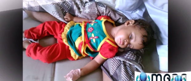 According to Yemen Health Ministry's report about the cholera situation in Yemen from April 27 to July 6, 2017, the total number of suspected cholera cases is 291,554, and half of the sick are children.